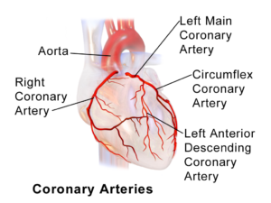 Coronary Artery Spasms Causes