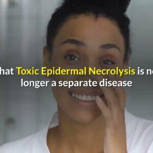Toxic Epidermal Nephrolysis Symptoms