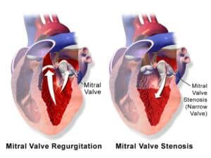 Heart Valve Disease Prevention