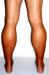 Signs Of Chronic Venous Insufficiency