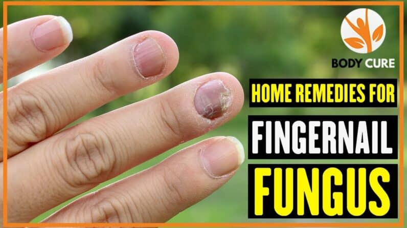 5 Home Remedies For Fingernail Fungus - Body Cure