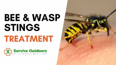 How to Treat Bee and Wasp Stings